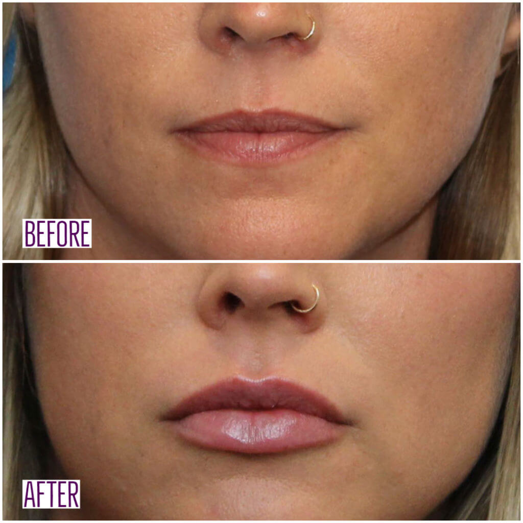 Lip Filler - Before & After